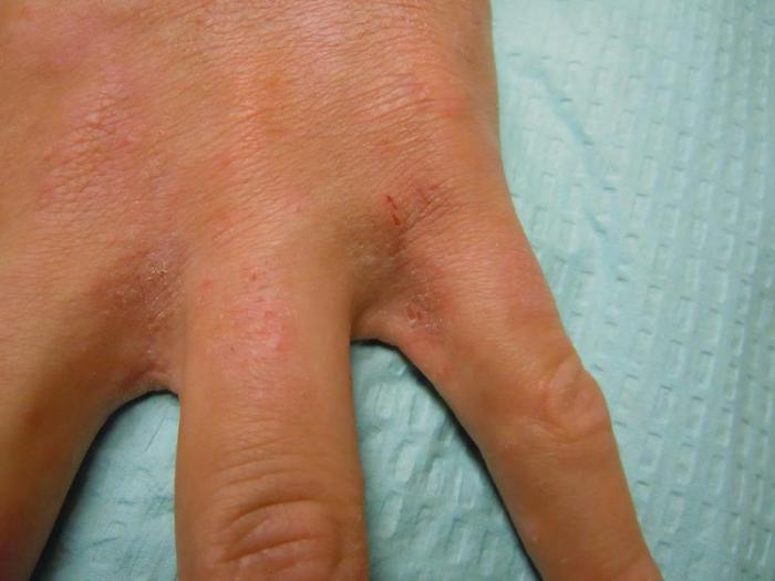 Symptoms of scabies in adults